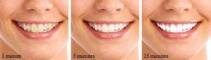 Brosse à dents automatique blancheur 360 - Sonoc Dents -MALAKAYA.com