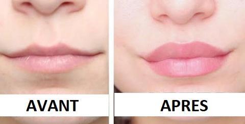 Le Sérum Naturel Repulpeur de Lèvres - Pulp Lips
