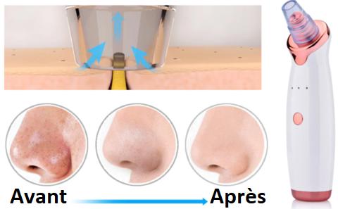 Aspirateur Points Noirs - Nettoyage de pores